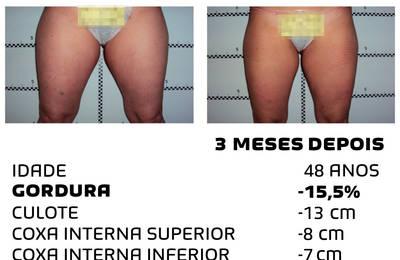 Como perder peso rapidamente - fotos antes e depois - Foto 10