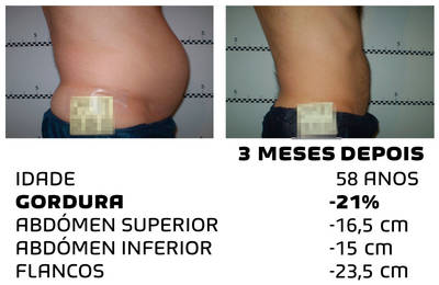 Como perder peso rapidamente - fotos antes e depois - Foto 4