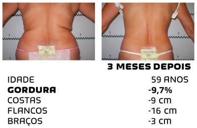 Como perder peso rapidamente - fotos antes e depois - Foto 5