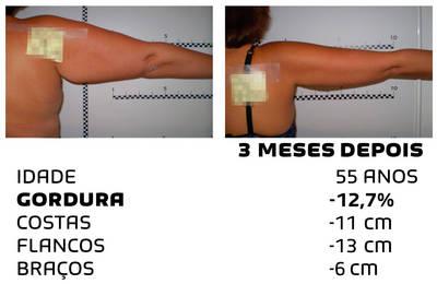 Como perder peso rapidamente - fotos antes e depois - Foto 6