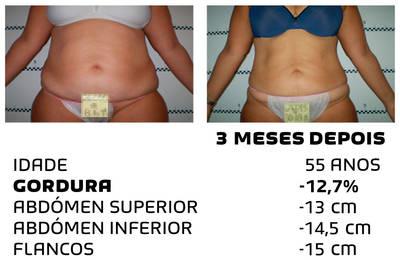 Como perder peso rapidamente - fotos antes e depois - Foto 7