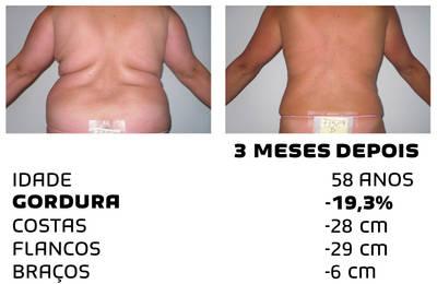 Como perder peso rapidamente - fotos antes e depois - Foto 8