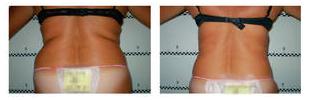 Como perder peso rapidamente - fotos antes e depois - Foto 1