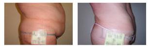 Como perder peso rapidamente - fotos antes e depois - Foto 3