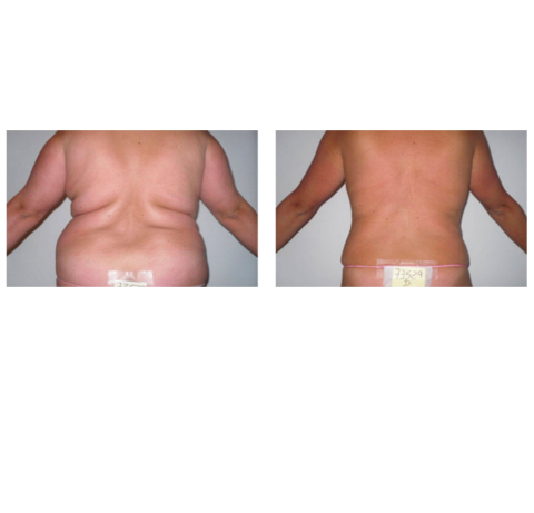 "World Leader in Anti-Aging and ""Liposuction"" non-invasive"