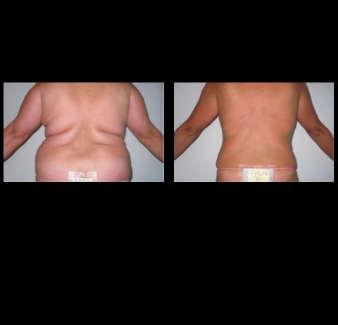 Bajar de peso - fotos antes y después